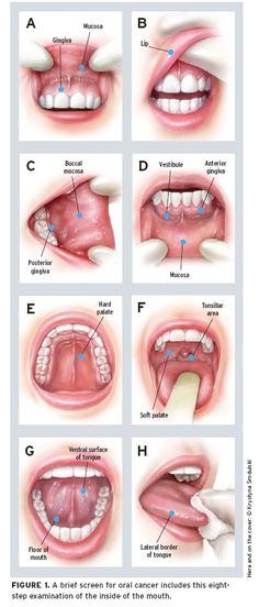 Oral cancer: How to find this hidden killer in 2 minutes - JAAPA