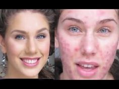 An amazing makeup for skin with acne!!!! beauty