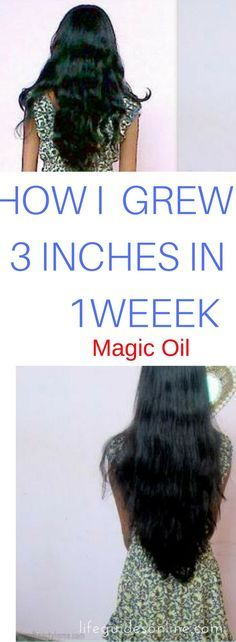 DIY hair growth tips. grow longer hair fast. hair growth treatment.