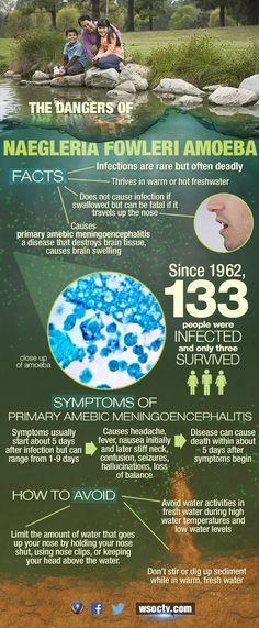 Brain-Eating Amoeba (Naegleria Fowleri): FAQ, Symptoms ...