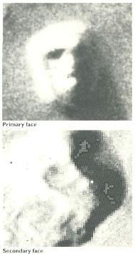 """As the focus of these Cydonia studies had been to the east of the D Pyramid, I began a survey of the images to the west of it, resulting in the discovery of a feature I call the Secondary Face, best seen on frame 70A11,(of the Viking images.)...Both Faces are of almost identical size, and both are aligned at more or less the same angle with respect to north on Mars. The Secondary Face appears to be more eroded..."" -Ananda Sirisena, in a letter on pg.64 of Fortean Times no.69 (June/July…"