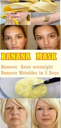 Acne Mask DIY - Homemade Acne Masks: Food for your Skin *** Find out more at the image link. #HomemadeAcneMask