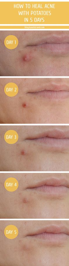 How to heal acne with potatoes in 5 days