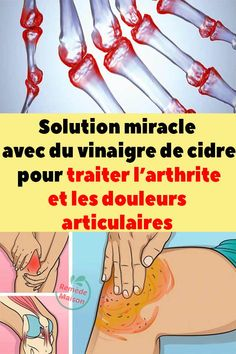 Solution, Projects To Try, Miracle, Comic Books, Exercise, Health, Cartilage, Sports, Medicine
