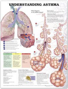 Asthma Chart - Asthma Poster - Anatomical Chart Company - AnatomyStuff #asthmamedications