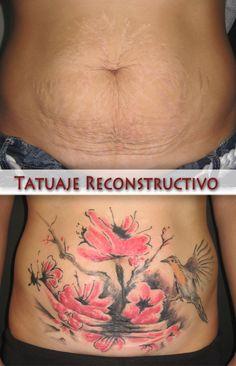 Tatuaje_reconstructivo.jpg (1141×1772)