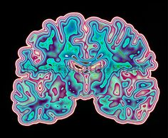 P3320336-CT_scan_of_brain-SPL.jpg (530×436)