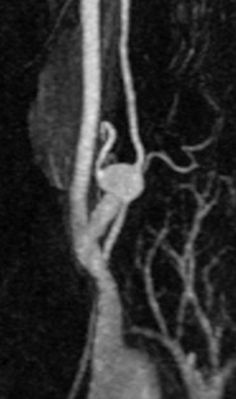 Subclavian artery aneurysm | Radiology Case | Radiopaedia.org Case study with corresponding ultrasound and MRA images