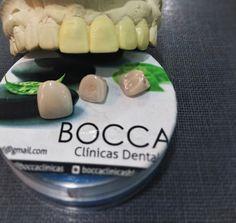 BOCCA      CLINICAS      DENTALES: Carillas céramicas, carillas en resina o Lentes ce...
