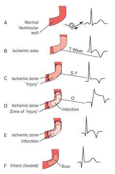 ECG Indications of Myocardial Ischemia, Injury & Infarction - NCLEX Quiz - tara Myocardial Infarction, Nursing School Notes, Nursing Schools, Lpn Schools, Cardiac Nursing, Nursing Mnemonics, Nursing Tips, Nursing Programs, Lpn Programs