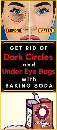 Remove Dark Circles & Under Eye Bags & Baking Soda & Lemon!!!