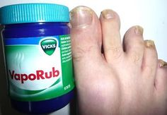 The recommended way to use Vick's to cure fungus nails is to coat the infected area with a thick spread of Vick's: wrap in a plastic wrap or cotton wrap, secure tightly, and wear for a few hours. This process should be done twice a day until the infection is gone. Reports show that the infected area may discolor, especially under toenails, but do not be alarmed, that is the Vick's killing the infection. It should take up to a week to start seeing results.