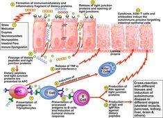 CELIAC SPRUE Gluten Can Trigger Autoimmune Attack: Thyroid disorders; Skin problems such as psoriasis and eczema; And chronic pain. Psoriasis On Face, Psoriasis Arthritis, Arthritis Symptoms, Ulcerative Colitis, Hypothyroidism, Thyroid Disease, Autoimmune Disease, Intestino Permeable, Cereal Sin Gluten