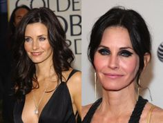Courtney Cox-Why ruin a good thing? These stars looked just fine until fear of aging and the pressure of the limelight led them to go overboard with cosmetic procedures - Celebrity Stil Plastic Surgery Video, Bad Plastic Surgeries, Plastic Surgery Gone Wrong, Celebrity Plastic Surgery, Courtney Cox Plastic Surgery, Jennifer Aniston Plastic Surgery, Botox Before And After, Celebrities Before And After, Fear Of Aging