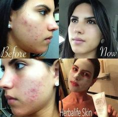 Check out the results from using the Herbalife SKIN line of skin care products! Click the link in our bio to see our skin care catalog. Herbalife Results, Herbalife 24, Herbalife Nutrition, Herbalife Motivation, Fitness Motivation, Herbalife Distributor, Herbalife Weight Loss, Skin Line, Even Skin Tone