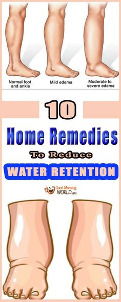 Watch This Video Enduring Reduce Water Retention With This Natural Remedy Ideas. Darling Reduce Water Retention With This Natural Remedy Ideas. Health And Fitness Tips, Health And Wellness, Wellness Tips, Foot Remedies, Health Remedies, Arthritis Remedies, Holistic Remedies, Daily Health Tips, Skin Care