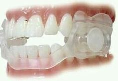 This is basically a plastic-based appliance, often worn while asleep. It protects the teeth from wear damage (caused buy clenching and grinding, AKA 'bruxism') and separates the jaw joint slightly to reduce TMJ symptoms.