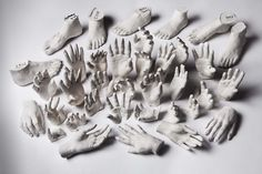 Hands and Feet cast in Plaster before Prosthetic Limb Manufacturing Process.