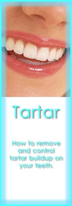 Tartar or calculus is plaque that hardens on teeth, just above the gum line or in between teeth gaps to form a brown solid. The solid changes color to gray or black in some people, when food particles accumulate on the solid deposit. Tartar buildup is not necessarily caused by poor dental hygiene