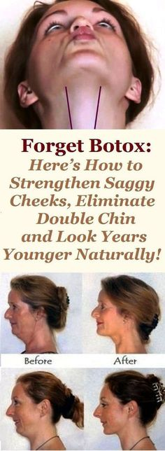 Forget Botox: Here's How to Strengthen Saggy Cheeks, Eliminate Double Chin and Look Years Younger Naturally! Forget Botox: Here's How to Strengthen Saggy Cheeks, Eliminate Double Chin and Look Years Younger Naturally! Yoga Facial, Beauty Secrets, Beauty Hacks, Beauty Tips, Diy Beauty, Beauty Solutions, Homemade Beauty, Beauty Makeup, Double Menton