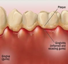 Natural Cures For Gingivitis - How To Cure Gingivitis Naturally | Search Herbal Remedy