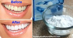 DIY Face Masks : 13 Natural Methods for Teeth Whitening... http://getfreecharcoaltoothpaste.tumblr.com