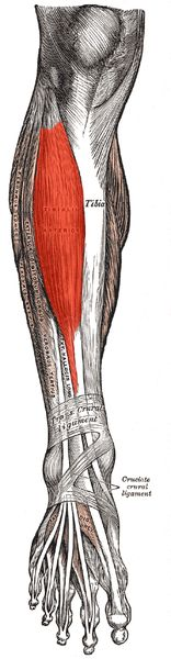Chronic anterior compartment syndrome