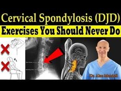 Cervical Spondylosis (DJD) Exercises You Should Never Do (Correct Exercises) - Dr. Cervical Spine Exercises, Cervical Pain, Back Pain Exercises, Neck Stretches, Posture Fix, Bad Posture, Pnf Stretching, Cervical Spondylosis, Neck Problems