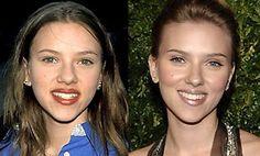 Scarlett Johannson Before After plastic surgery