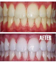 DIY Teeth Whitening « Can Be Dun