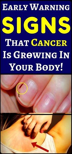 These are the earliest signs that cancer might be growing in your body, never ignore them - health and fitness. These are the earliest signs that cancer might be growing in your body, never ignore them - health and fitness. Health And Wellness, Health Tips, Health Fitness, Health Care, Health Exercise, Fitness Hacks, Women's Health, Wellness Tips, Nutrition Tips
