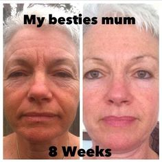 Luminesce Serum - 8 Weeks www.BeYoungerBeBeautiful.jeunesseglobal.com or contact info@BeYoungerBeBeautiful.nl