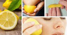 I limoni sono uno dei frutti più sorprendenti che esistano. Grazie alle sue molteplici proprietà (depurativa, antitumorale, disinfettante, antiossidante, curativa, coagulante, etc.) è il frutto che viene maggiormente utilizzato. E' ricco di vitamine ed è il vegetalecon il più alto contenuto di acido citrico, una sostanza essenziale per il ricambio energetico delle cellule. Contiene citrati di sodio e di potassio, che hanno un fortepotere depurativo. Se anche tu hai preso la buona…