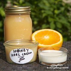 How To Make A Moisturizing Heel Cream