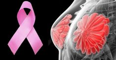 The Best 9 Foods for Breast Cancer Prevention According to Scientific Studies Turmeric Juice, Turmeric Essential Oil, Turmeric Root, Colon Cancer, Cancer Cells, Cancer Fighting Foods, Types Of Cancers, Breast Cancer Survivor, Health And Wellbeing