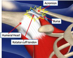 Physiotherapy for CrossFitters: Shoulder issues in Crossfit
