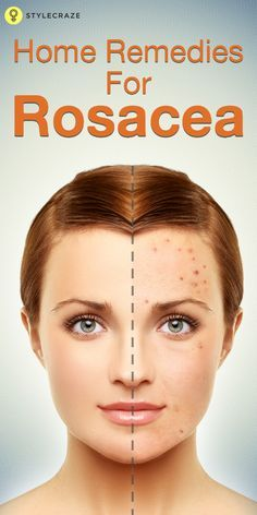 Rosacea! Most people are unaware of its very existence. But if you have ever woken up to see an outbreak of acne on your forehead, chin, and even cheeks, you, dear reader, had a close encounter with Rosacea. Best Home Remedies for Rosacea:  #Homeremedies