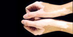 Dr. Shailesh Jain provides most effective and safe ayurvedic treatment for vitiligo or leucoderma by offering ayurvedic remedies like bakuchi (psoria cordifolia), bringraj, kutaki and other related remedies.