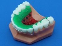 Standard Hawleys | Retainers | Specialty Appliances Orthodontic Lab