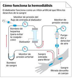 Cómo funciona la hemodiálisis