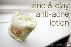 "Zinc and Clay Anti-Acne Lotion - ""It's an amazing pore-vacuuming, healing-encouraging, skin de-toxing powdered miracle"" 