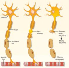 What are some effective treatments for Morton's neuroma?