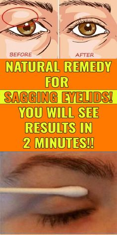 Get Rid of Droopy Eyelids As we grow up, our body is going through a number of adjustments. Metabolism becomes slower, we turn out to be liable to arthritis and the worst comes whilst wrinkles begi… Arthritis, Beauty Care, Beauty Hacks, Beauty Skin, Hair Beauty, Beauty Essentials, Beauty Secrets, Drooping Eyelids, Natural Solutions