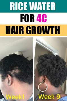 Easy rice water recipe for 4c hair growth. Follow this recipe to stop the hair breakage now. #ricewater Relaxed Hair Growth, 4c Hair Growth, Black Hair Growth, Natural Hair Growth Treatment, Natural Hair Growth Remedies, Grow Thicker Hair, Hair Care Recipes, Hair Shedding, Hair Breakage