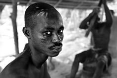 Wounds-Ghana by Lisa Kristine