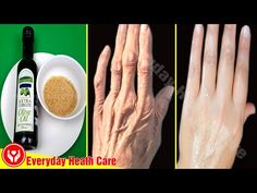 How To Get Rid Of Wrinkles Fast And Easy - YouTube Home Remedies For Wrinkles, Heath Care, Wrinkle Remedies, Skin Treatments, Face Wrinkles, Wrinkled Skin, Wrinkle Remover, Health And Beauty Tips, Beauty
