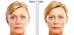 Aesthetic Treatments For Skin In Menopausal Women