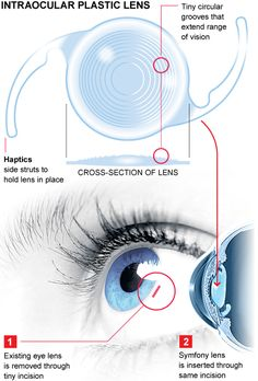New implant improves vision for older people struggling with cataracts, astigmatism, or long and short-sightedness. Medical Technology, Wearable Technology, Science And Technology, Eye Sight Improvement, Operation, New Inventions, Nanotechnology, Future Tech, Spy Gadgets