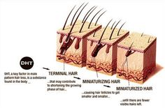 dht and hair loss affects both men and women. DHT is dihydrotestosterone that is the product direct contact between the enzyme found The skin and head of the hormone testosterone. Stop Hair Loss, Prevent Hair Loss, Facial Hair Growth, Reverse Hair Loss, Natural Hair Loss Treatment, Hair Patterns, Advanced Hair, Regrow Hair, Hair Loss Women