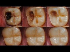 How to Heal Cavities and Tooth Decay Naturally with These Home Remedies
